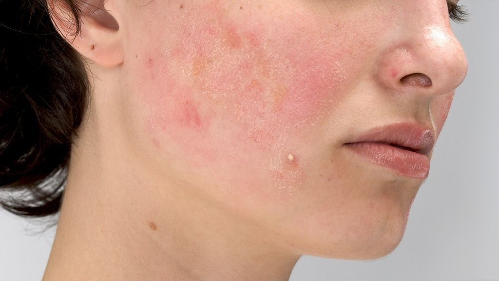 Take Care of Acne-Prone Skin and Redness